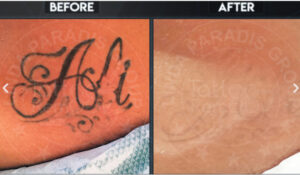 magnetic_tattoo_Before-After