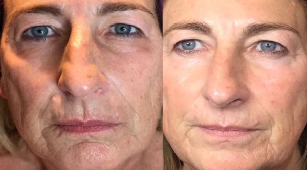 Plasma-Lift-full-face-before-and-after